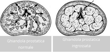 Prostata: la vaporizzazione laser efficace anche a lungo termine