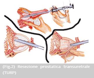 incisione laser transuretrale della prostata