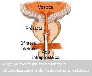 intervento ipertrofia prostatica