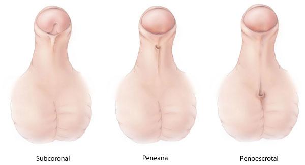 perché può esserci una rapida erezione i peni sono i più grandi