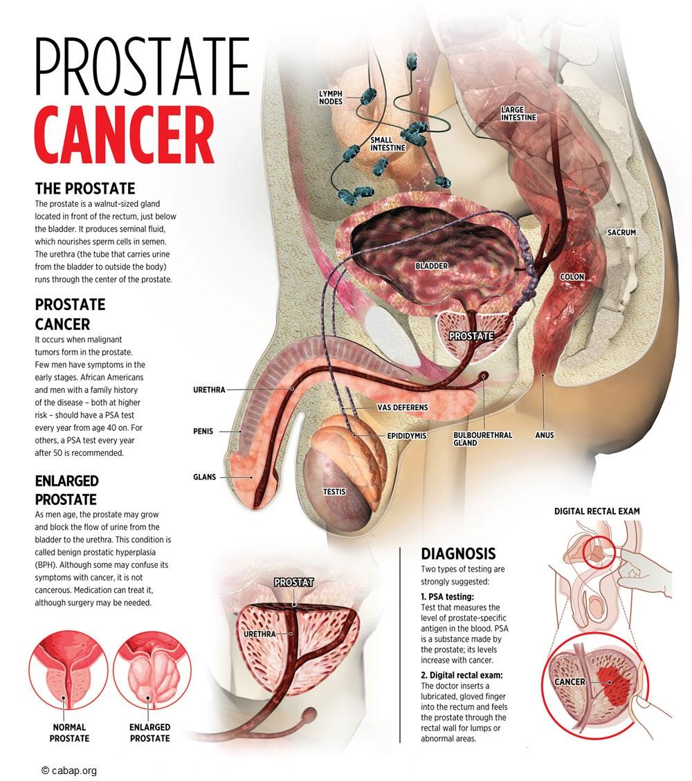 miglior terapia sistemica carcinoma della prostata